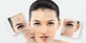Cara Mengatasi Masalah Kecantikan
